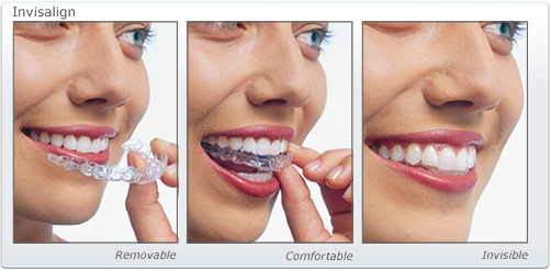 invisalign-auckland-treatment-dental